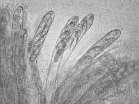 http://mycoweb2.narod.ru/fungi/Submitted/SAE3/Bisporella_citrina_asc500amm_SAE_20080922.jpg